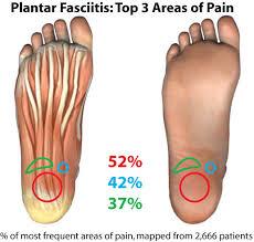 plantar fascia percentages